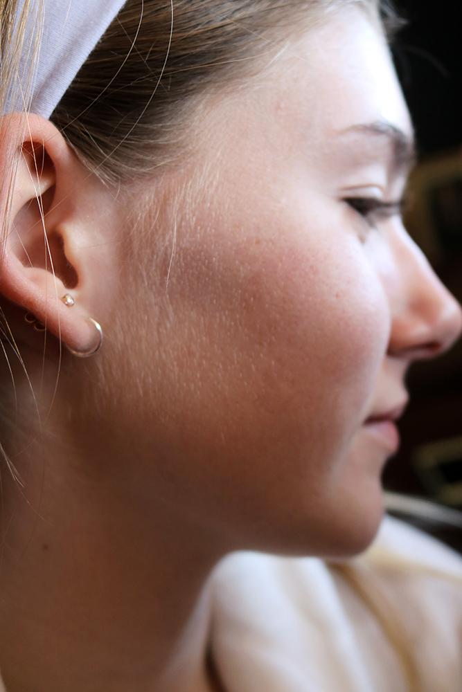 DERMAFLASH Skincare Routine